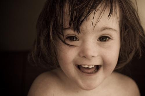 Alimentación de niños con síndrome de Down