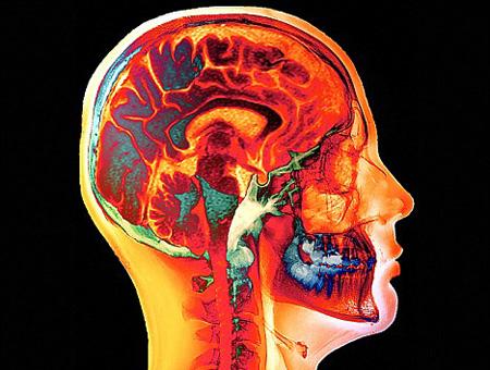 Bajar de peso con tu cerebro