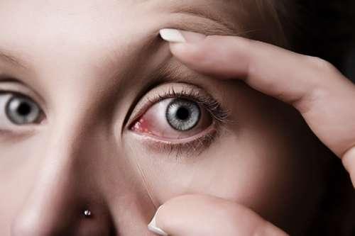 Caspa en los ojos